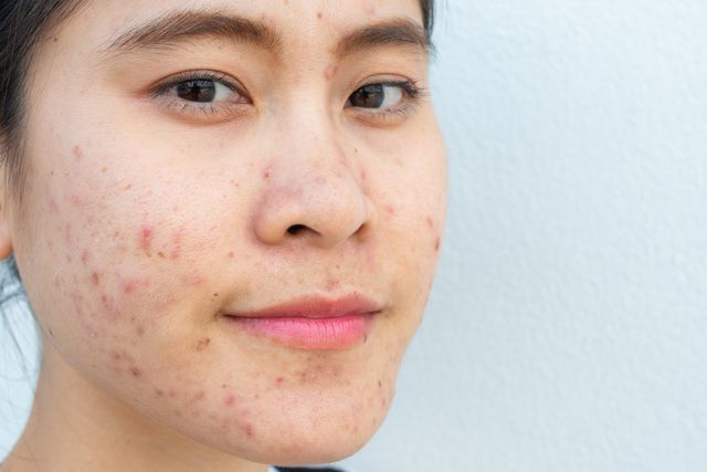 conceptual of problems on woman skin