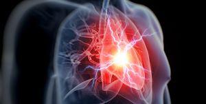 Human heart attack, illustration