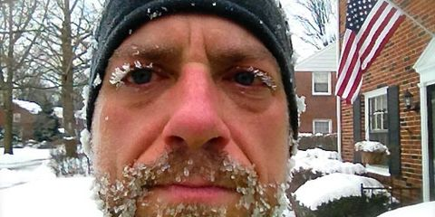 Mark Remy Ice Face