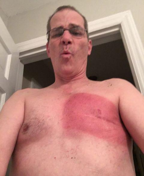 male breast cancer is rare but john falk beat it twice