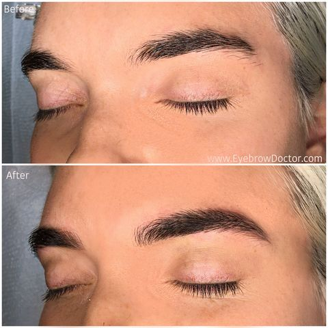 Microblading Eyebrows, Explained - What Temporary Eyebrow Tattoos ...