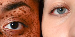 Beauty Portrait of Young Women with Freckles and Acne