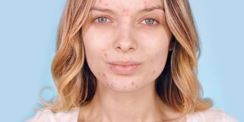 Why People Are Posting Acne Photos on Instagram - Skin Positivity