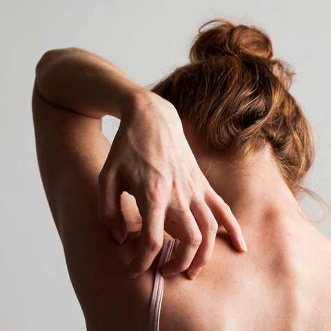itching without rash