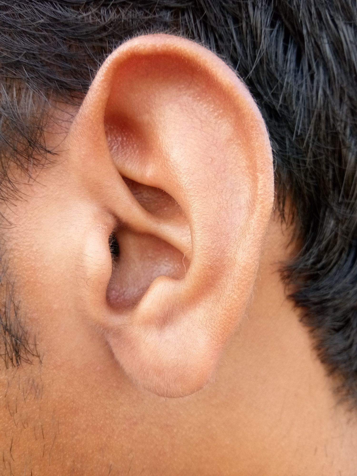 Itchy inner ears? Sounds like you might have eczema