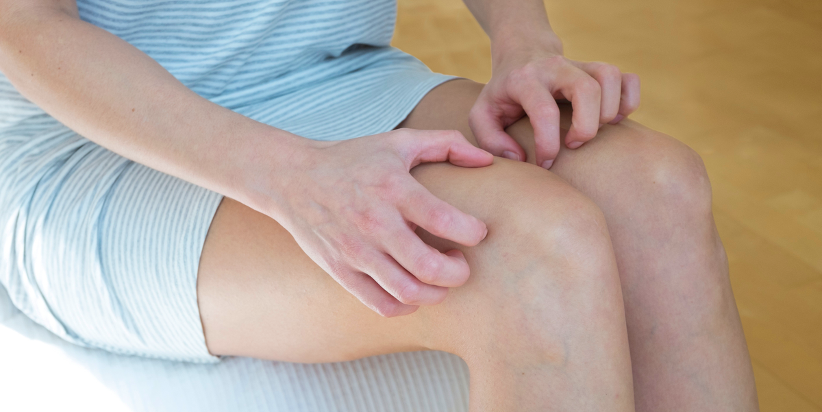 Why Your Legs Are Itching Like Crazy, According to Dermatologists