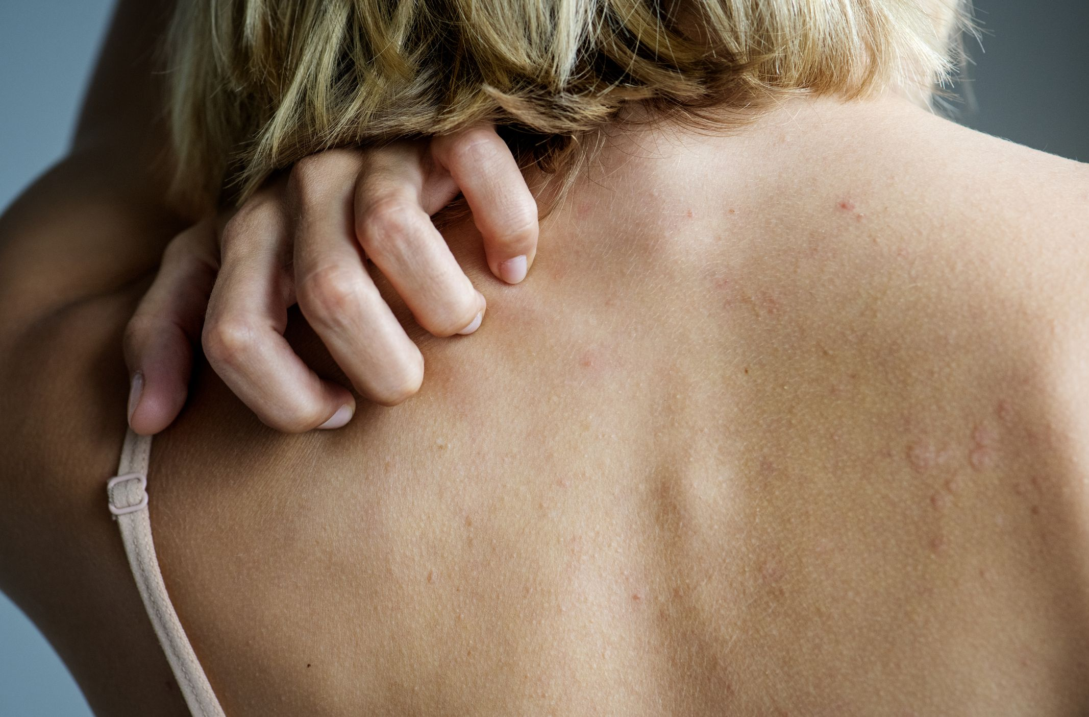can steroids cause itchy skin