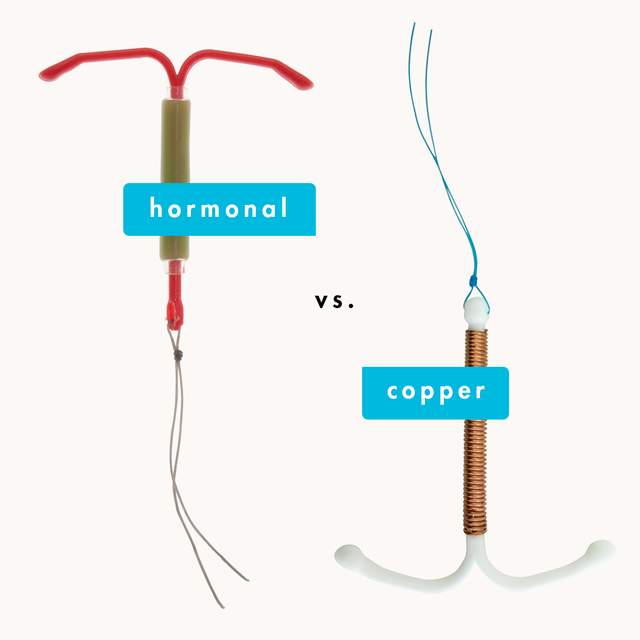copper vs hormonl iud
