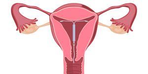 contraceptive coil (IUD)