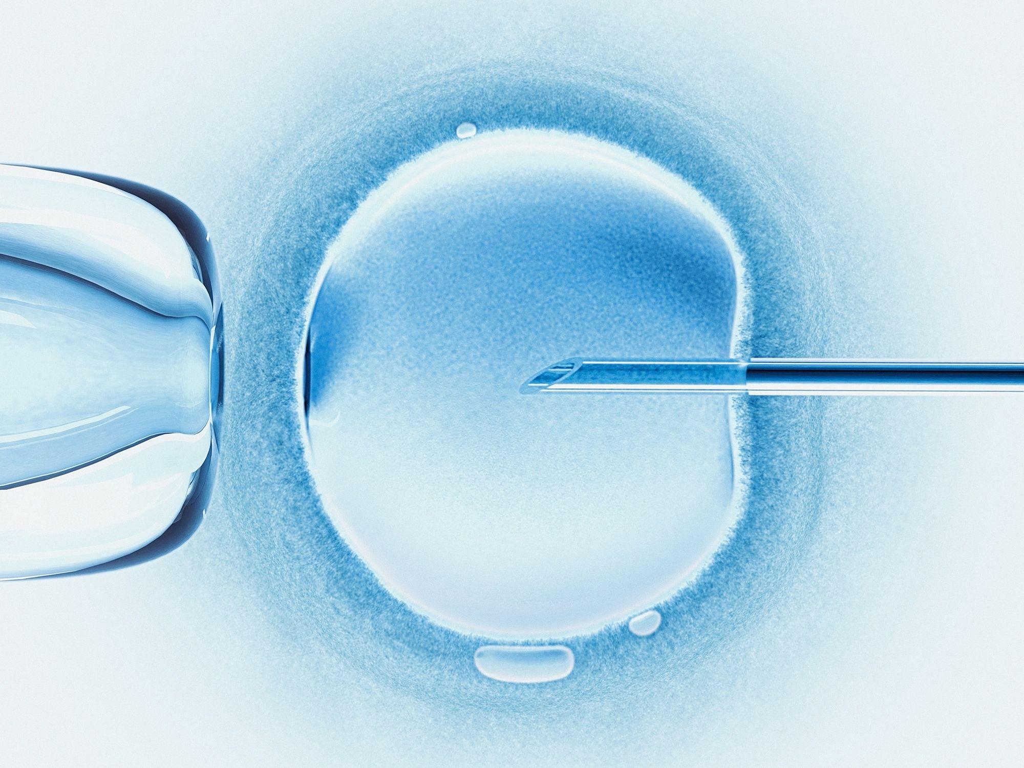 Clinics Retrieving 'Far Too Many' Eggs from IVF Patients
