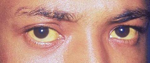 Eyebrow, Face, Eye, Skin, Forehead, Iris, Eyelash, Nose, Close-up, Head,