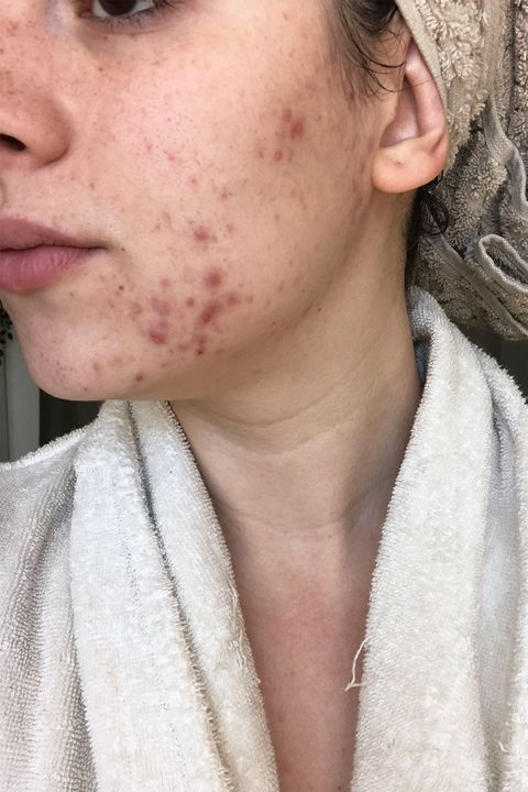 How Seed Cycling Fixed My Hormonal Acne And Cystic Breakouts