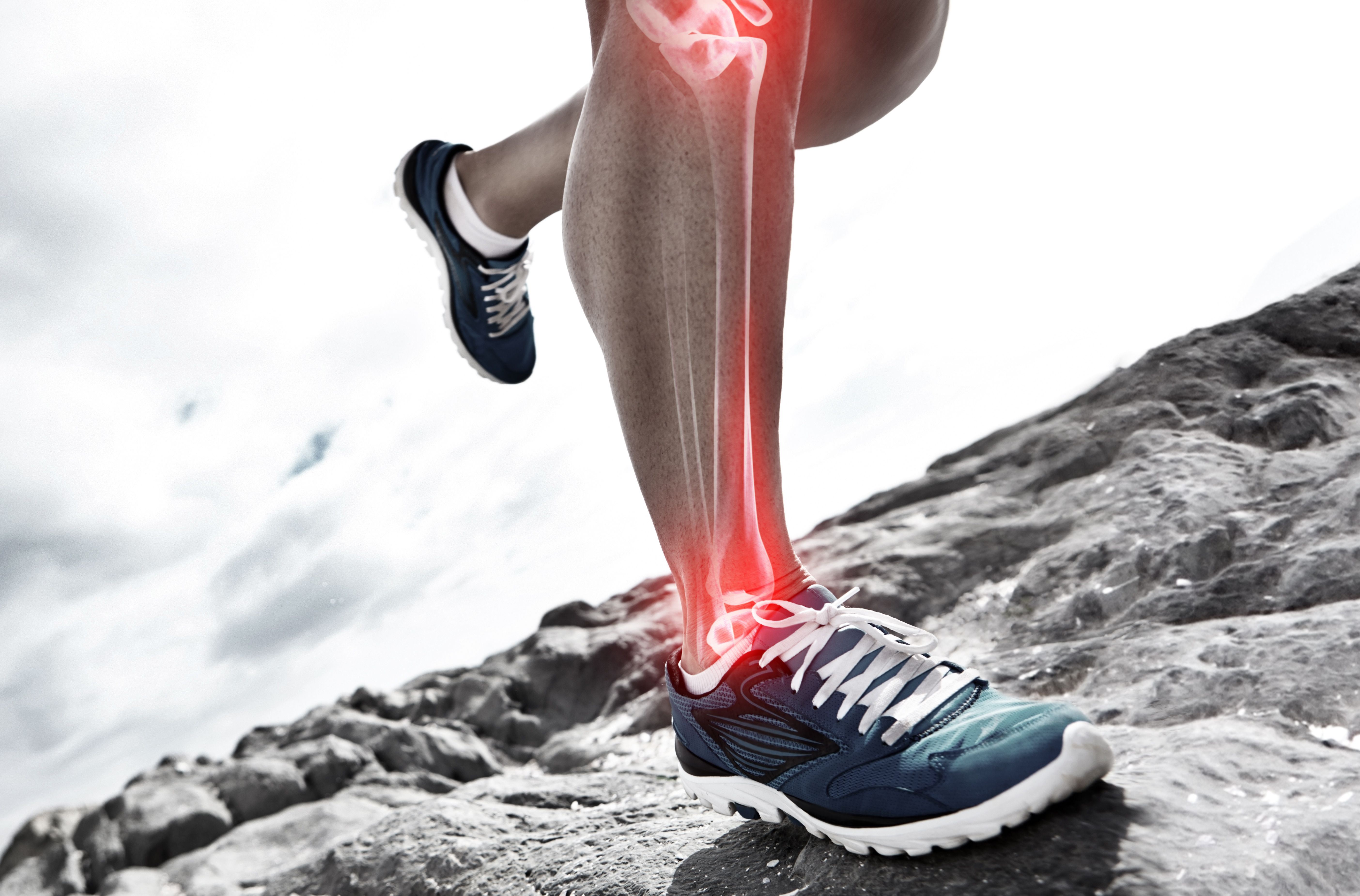 Tibia Stress Fractures Fast Running Is Running Bad For You