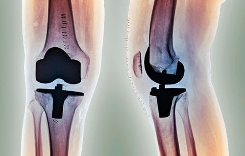Do You Have to Stop Running After Joint Replacement