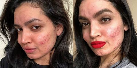 kadeeja khan loreal dropped campaign acne skin issues