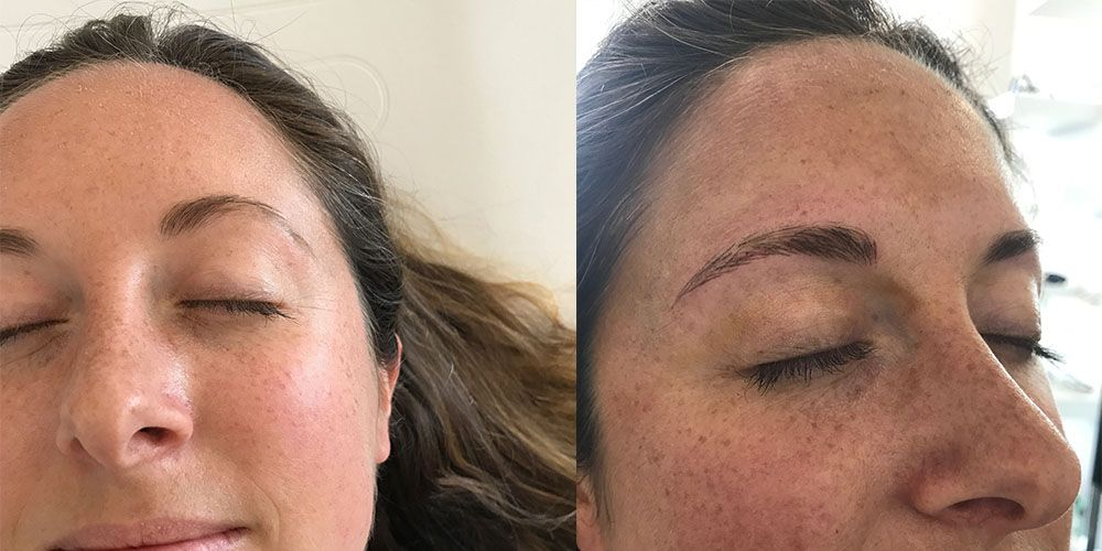 Kelli Accardio microblading before and after