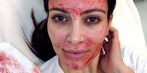 Face, Skin, Eyebrow, Cheek, Nose, Head, Forehead, Lip, Close-up, Eye,
