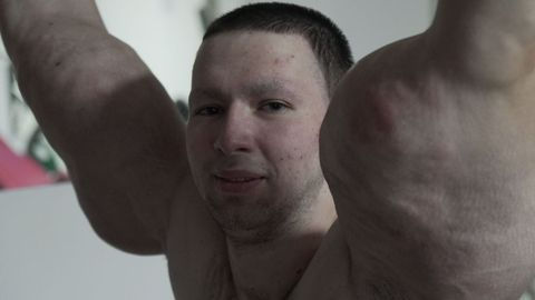 Russian ?Hulk? Injects Dangerous Chemicals To Look BIGGER