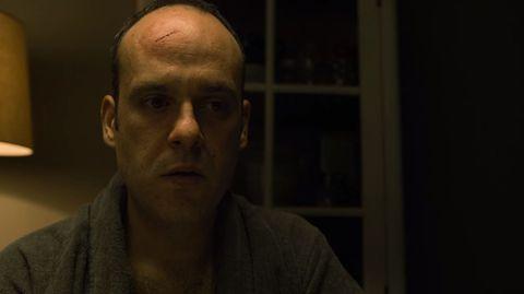 Face, Forehead, Chin, Head, Cheek, Nose, Eyebrow, Skin, Human, Facial hair,