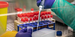 Swabs Are Tested For Coronavirus At Milan Laboratory