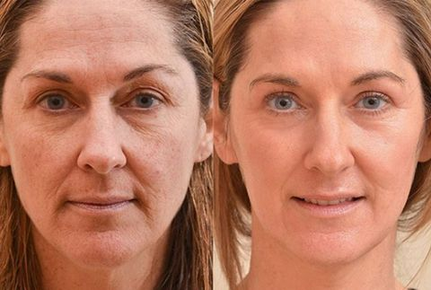 how to get rid of fine lines under eyes