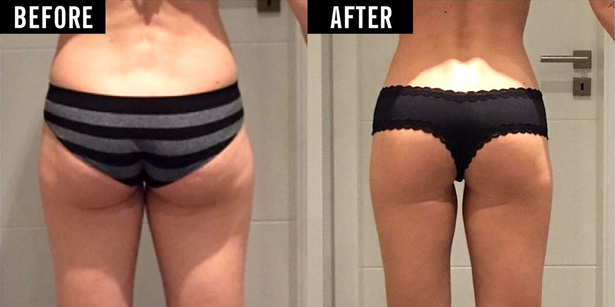 How This Woman Sculpted Her Saggy Work Butt Into an Ass of ...