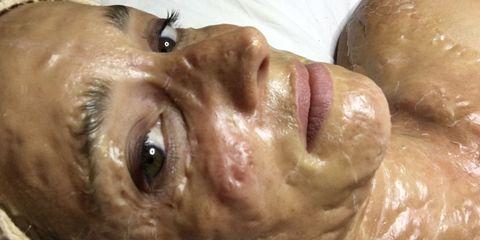 Lip, Cheek, Brown, Skin, Chin, Forehead, Jaw, Organ, Iris, Temple,