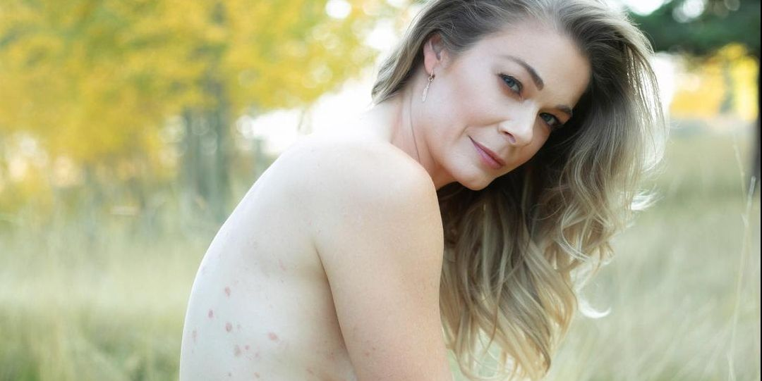 LeAnn Rimes Proudly Shares Nude Photos as Her Psoriasis Returns for the First Time in 16 Years