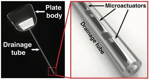 purdue glaucoma drainage device