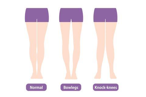 快速瘦大腿 腿型檢測 o型腿 x型腿