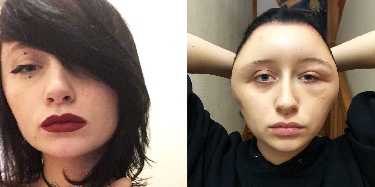 woman had severely swollen head after allergic reaction to