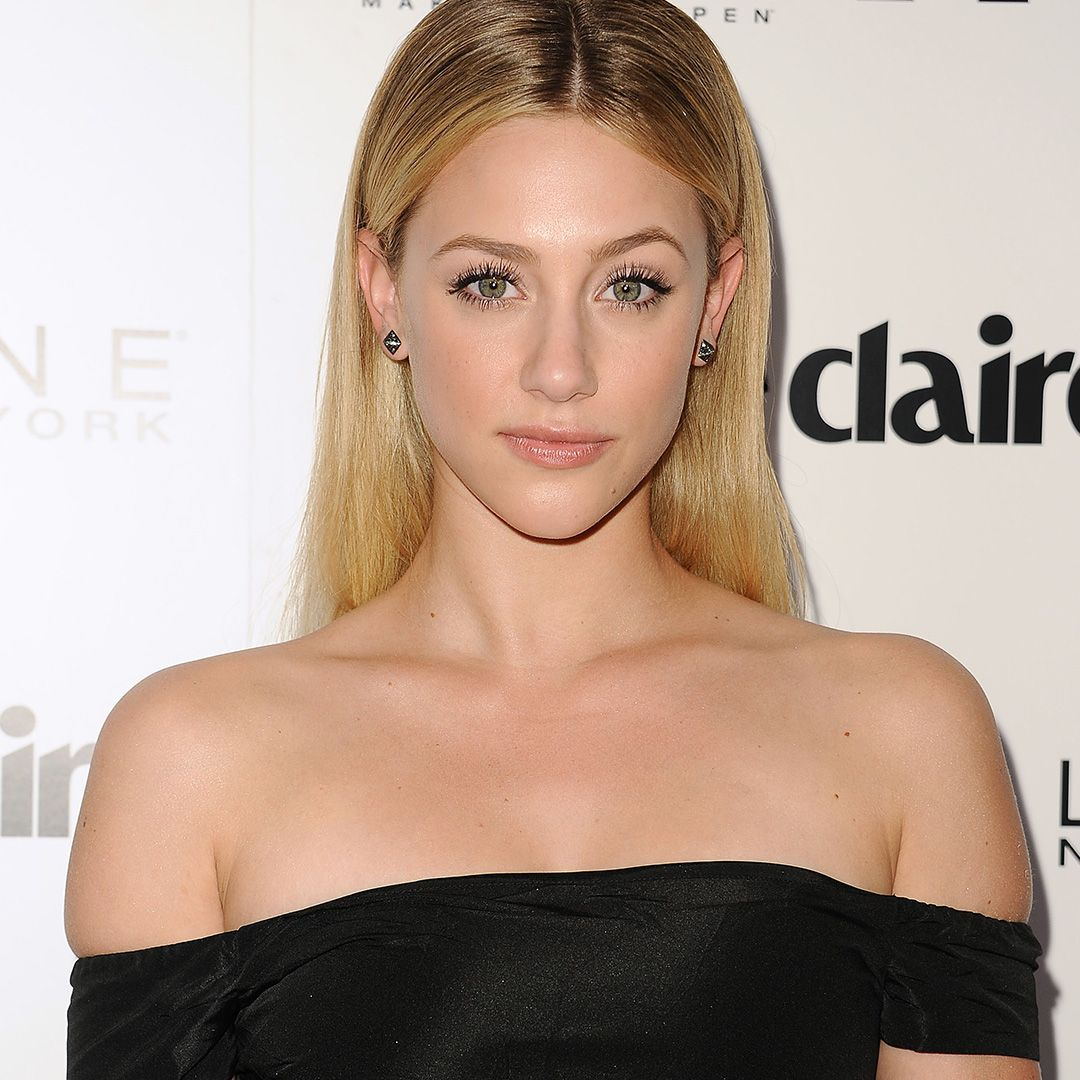 "Lili Reinhart The Riverdale actress opened up on Instagram Stories about her battle with adult acne. ""I've had cystic acne since I was 12. And it has caused major self esteem issues ever since,"" she revealed on Instagram, per People ."