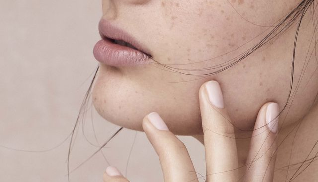 The lip flip: everything you need to know