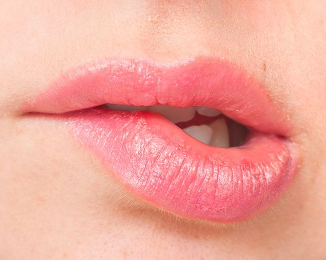 Sunburn Treatment for Your Lips