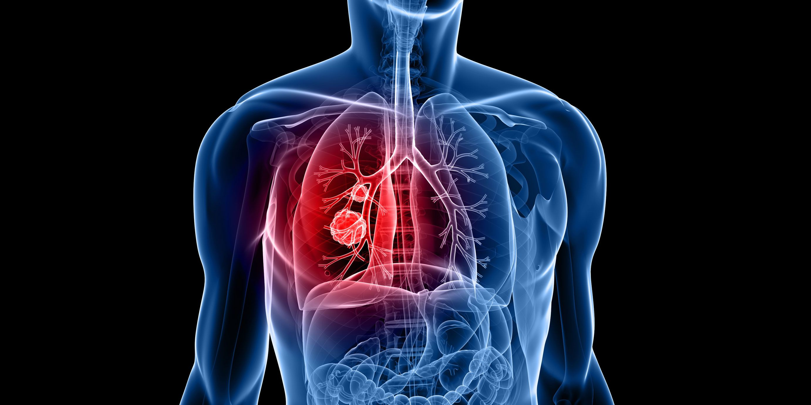 Image result for lung cancer image