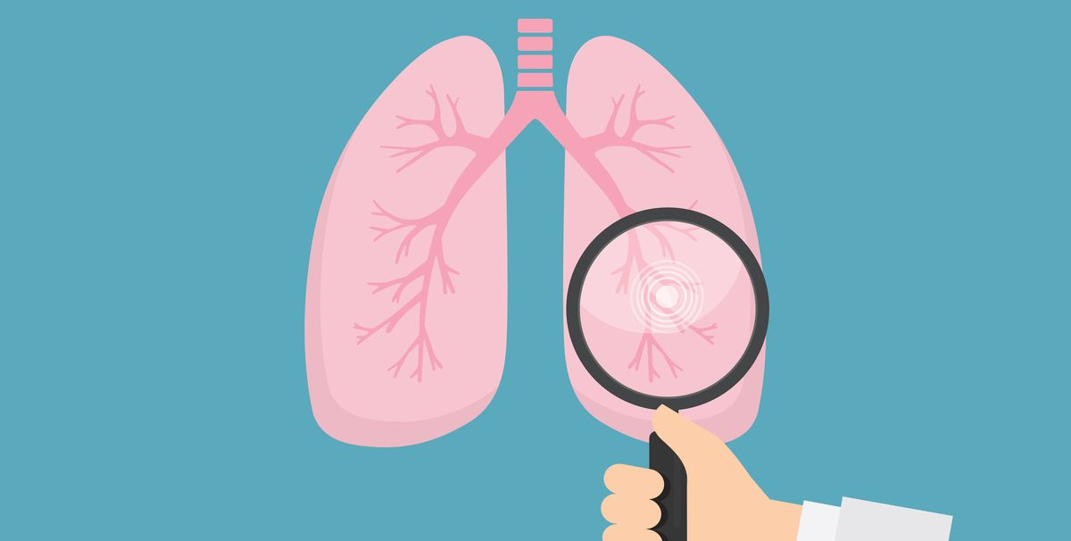 What Are The Symptoms Of Lung Cancer