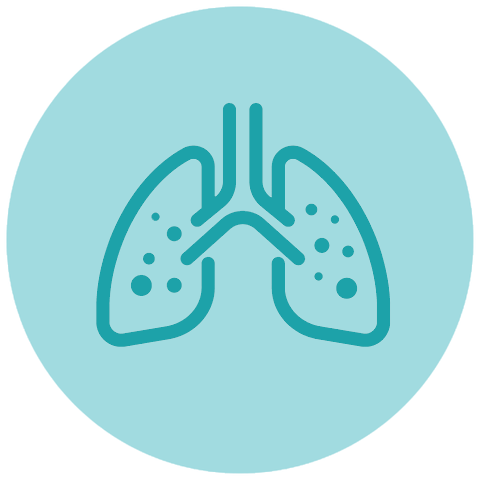 lung cancer causes - asbestos exposure