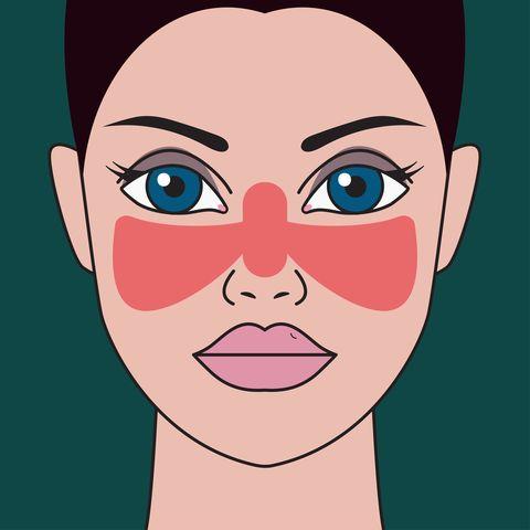 Lupus symptoms, diagnosis and treatment