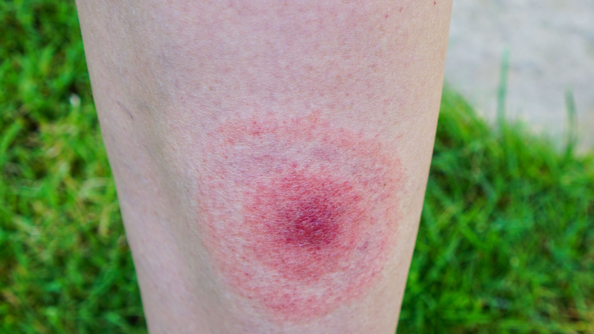 Lyme disease body aches