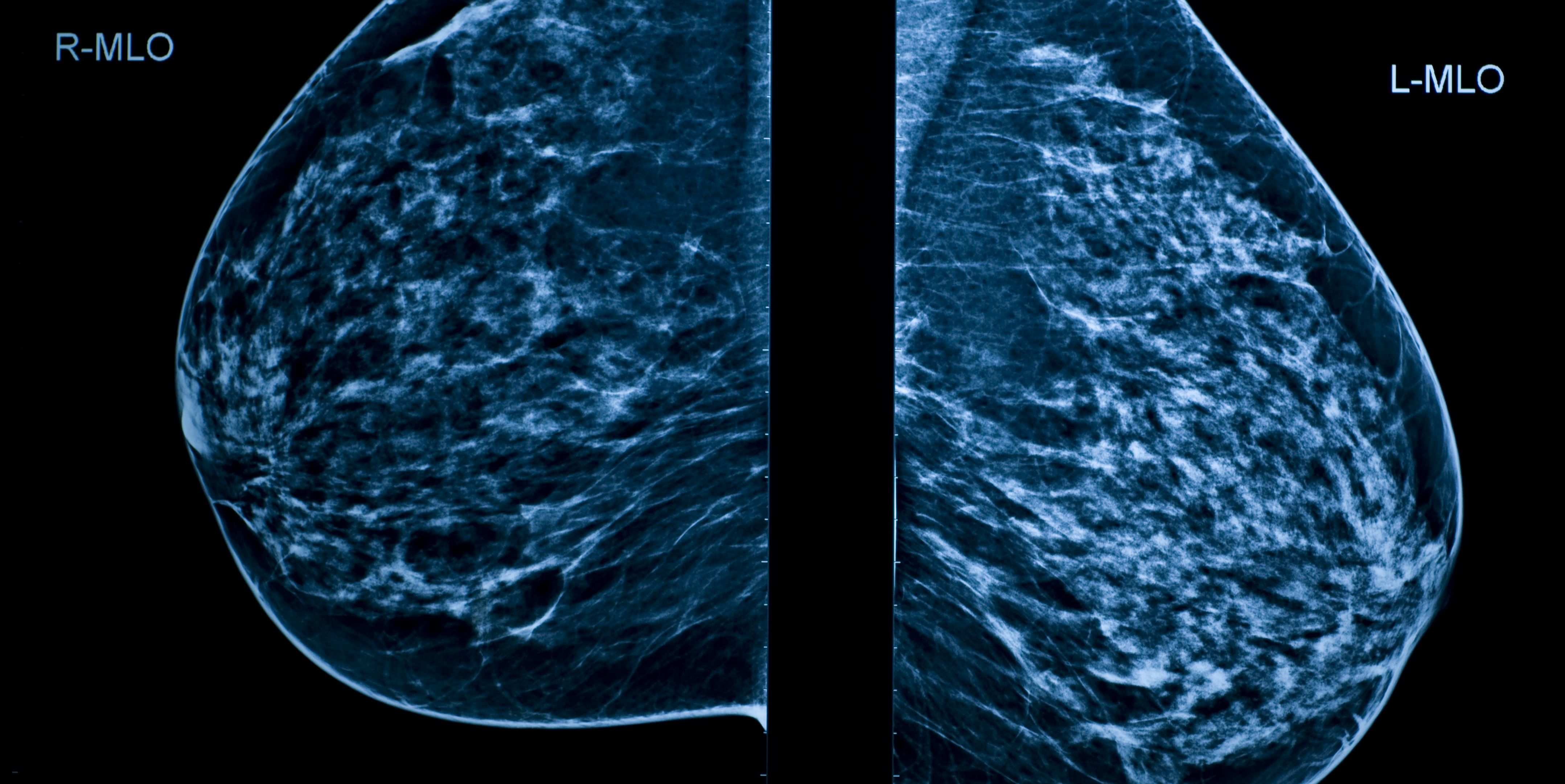 A Mammogram image showing left and right breasts