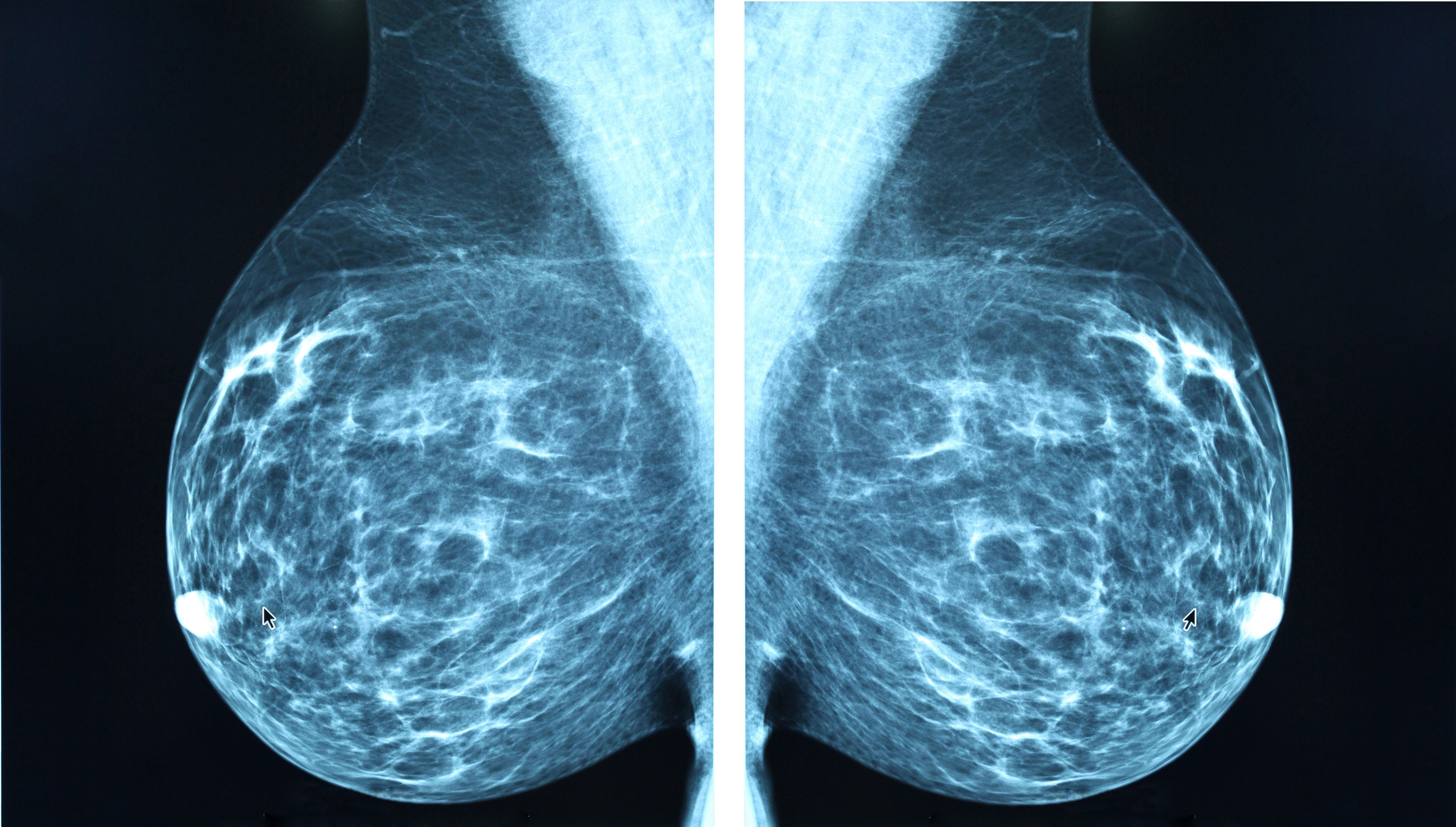What Causes Breast Cancer? The 18 Factors That Put You at Biggest Risk