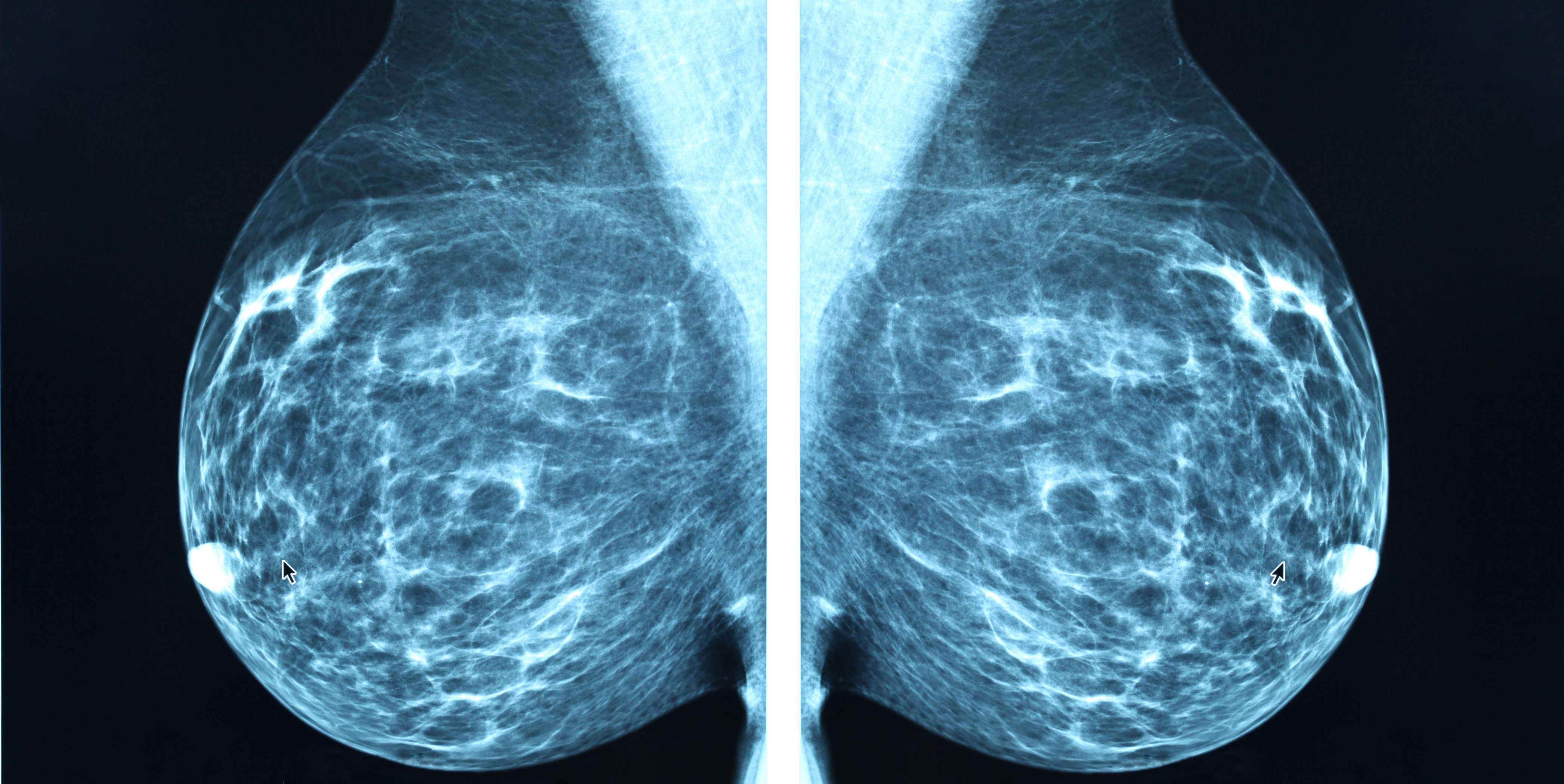 Mammogram radio imagingr breast cancer diagnosis