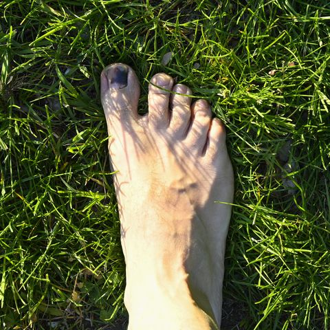 A man has a wound toe because wearing small shoes. The foot is on a floor with grass.