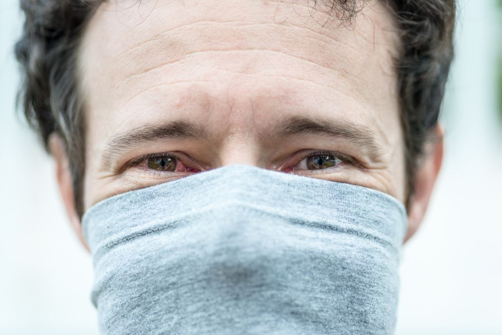 Here's Why Pink Eye Could Be a Sign You Have COVID-19 thumbnail