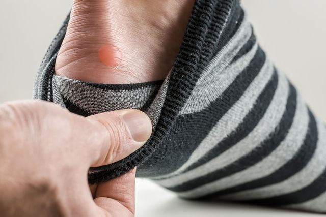 man with a blister on his heel