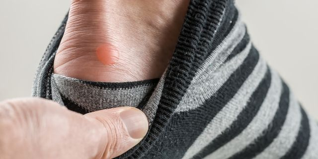 Blister Treatment How To Get Rid Of A Blister