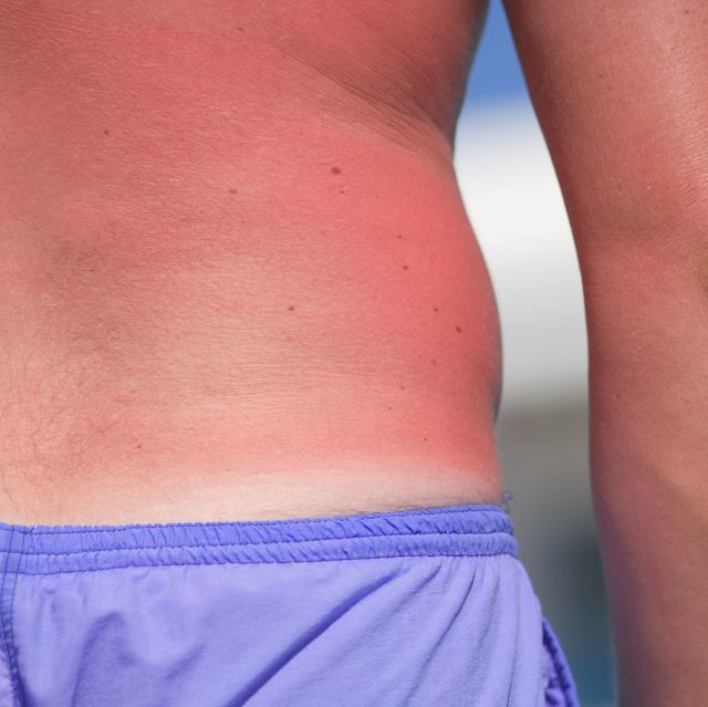 Man with sunburnt back, mid section, close-up