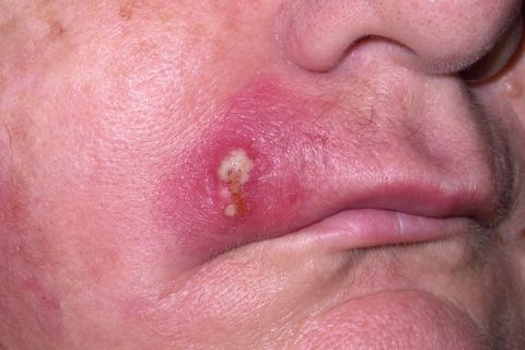 first signs of mrsa look like