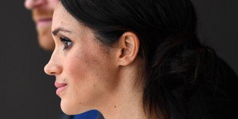 Face, Hair, Nose, Cheek, Chin, Ear, Eyebrow, Hairstyle, Skin, Forehead,