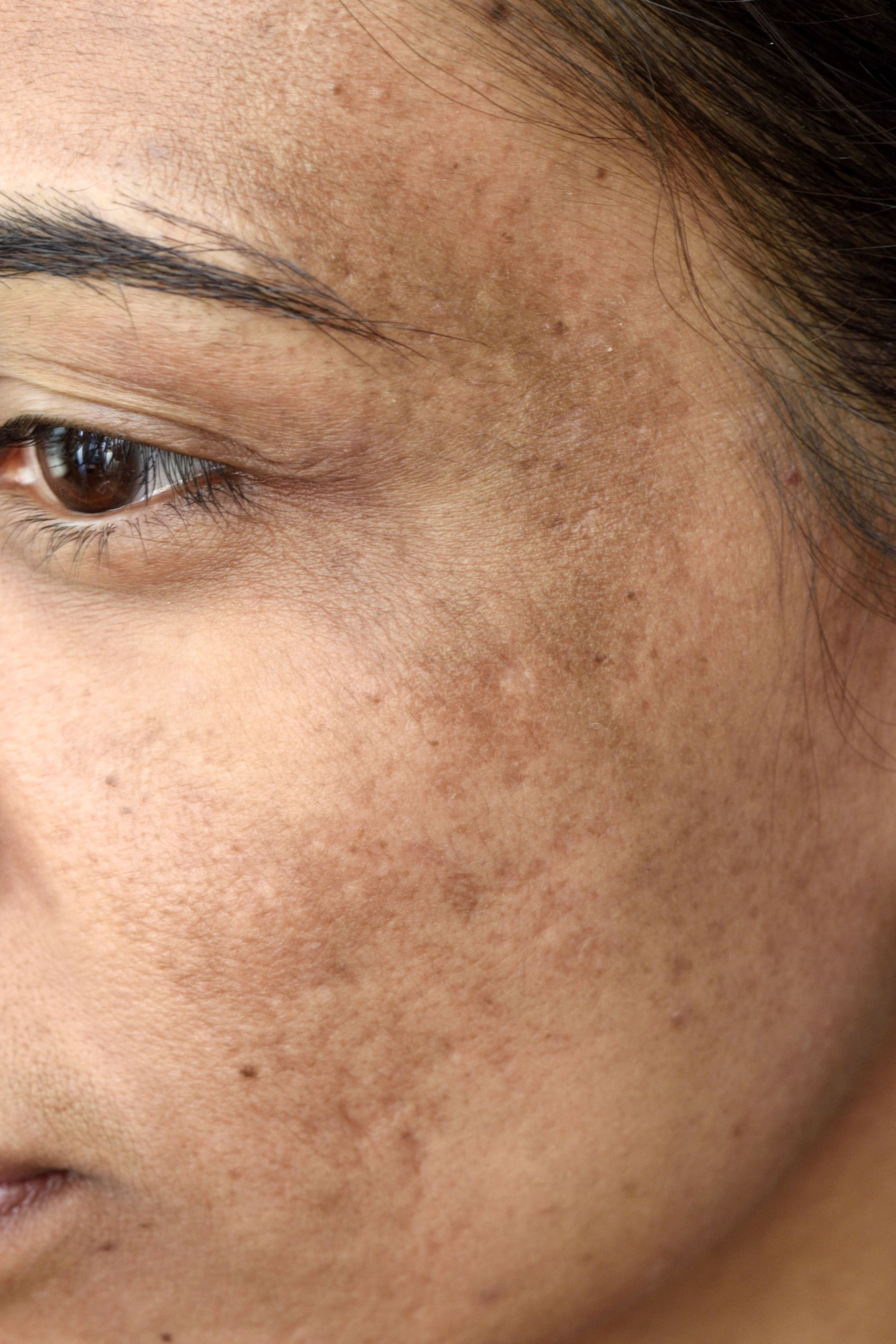 8 Common Skin Problems and How to Fix Them - Acne and